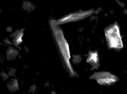 트레몰라이트석면의 전자현미경 사진 [출처-환경보건시민센터]